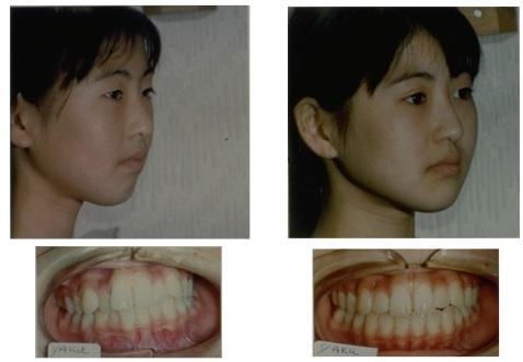 OrthotropicsCase8