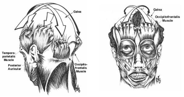 GaleaTension