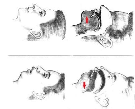 tongue-posture