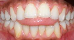 tongueThrust