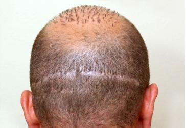 transplant_scar
