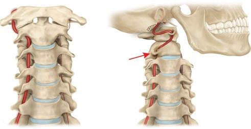 arteryOcclusion