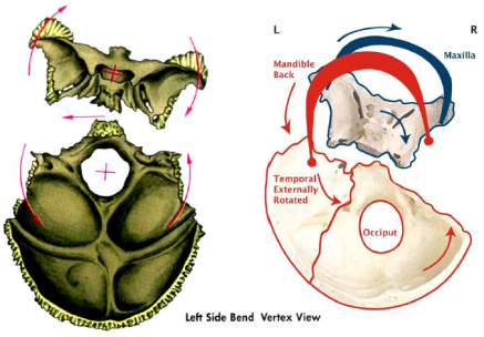 cranialDistortion