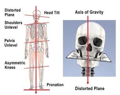 cranialScoliosis