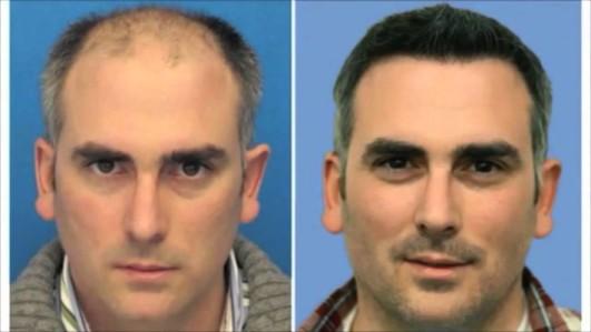 hair-transplant-result