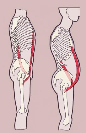 rigid-belly